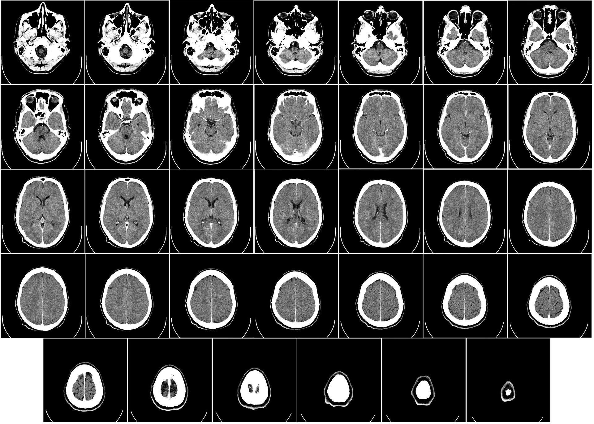Sobres para radiografías